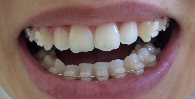antes dentes irregulares