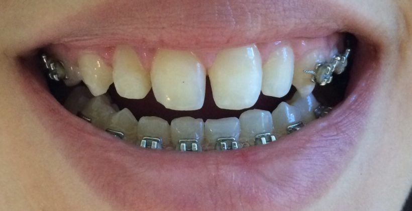 sorriso antes do tratamento