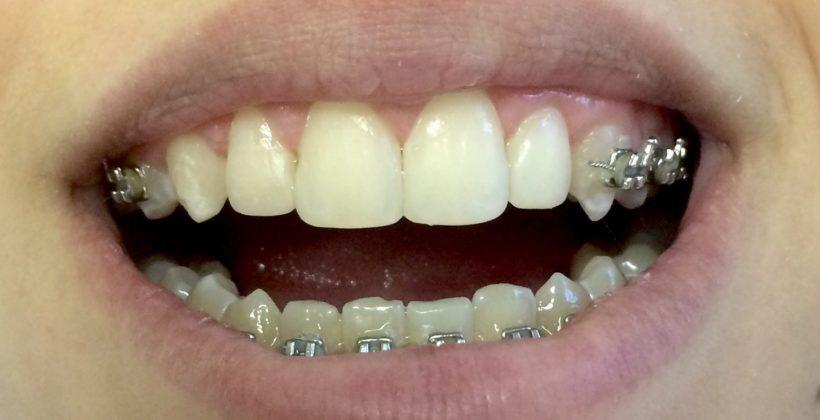 sorriso depois do tratamento