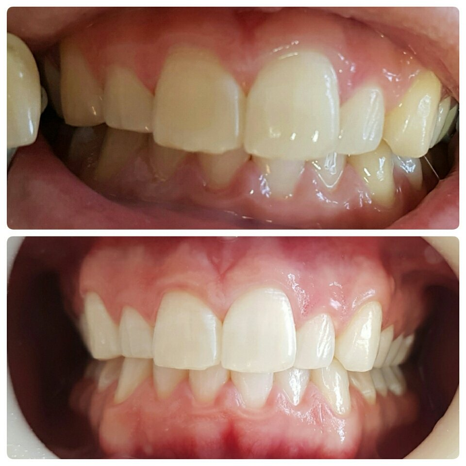 Exemplo De Clareamento Dental A Laser Epeo