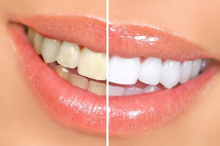 Dentes amarelos causas e tratamentos