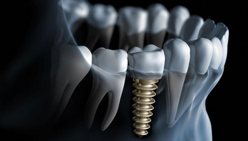 Como cuidar dos seus implantes dentários