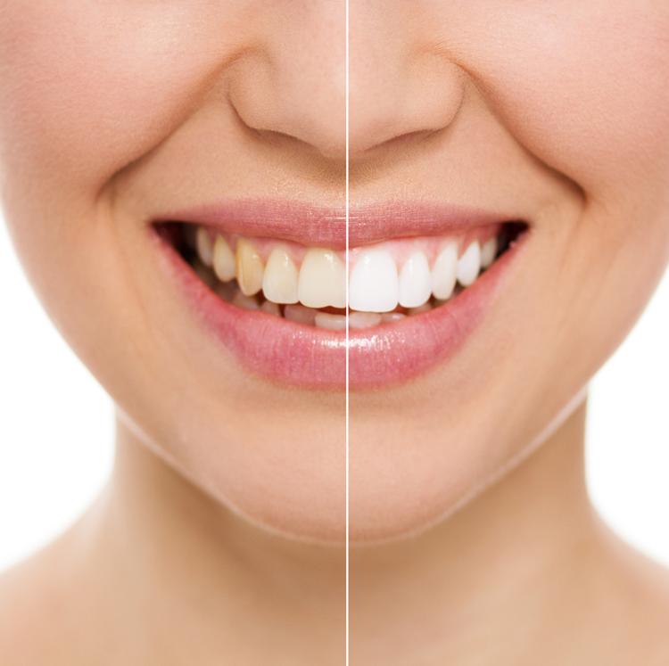 Os clareamentos dentais caseiros são seguros?