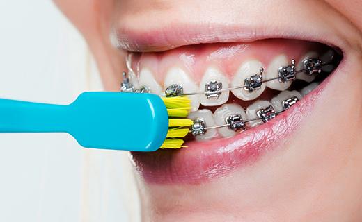 7 dicas para escovar os dentes com aparelho