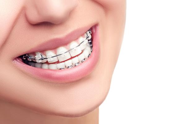 Aparelho dental apenas nos dentes inferiores
