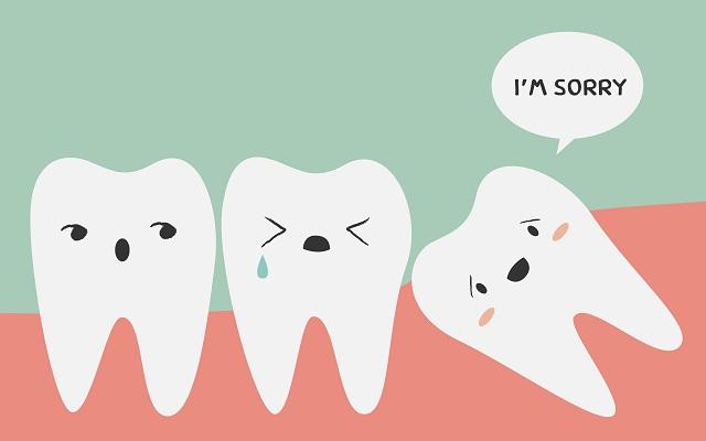 Tudo sobre os dentes do siso