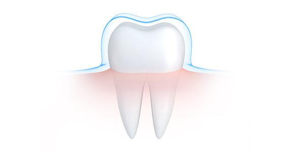 Esmalte do dente: todas as coisas que você precisa saber
